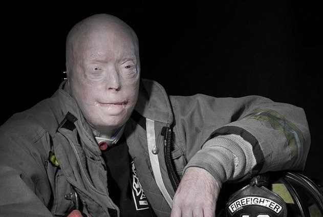 تصاویر پیوند کامل صورت یک آتش نشان بعد از 15 سال