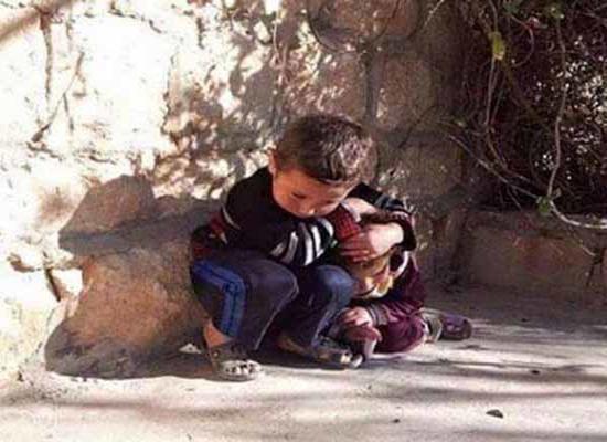 کودکی که سپر بلای خواهرش شد+ عکس