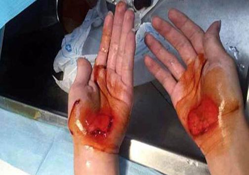 تنبیه ظالمانهی معلم ورزش، خون از دست دانش آموزان جاری کرد + تصاویر
