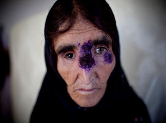 شیوع بیماری مرگبار ترسناک میان داعشی ها + تصاویر