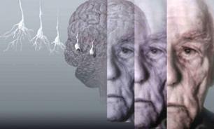 Image result for مغز پیر