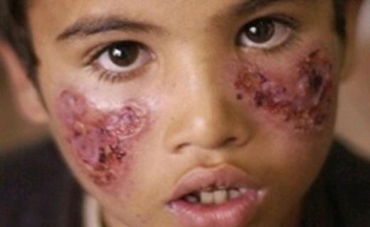 ظهور یک بیماری وحشتناک در میان داعشی ها + عکس