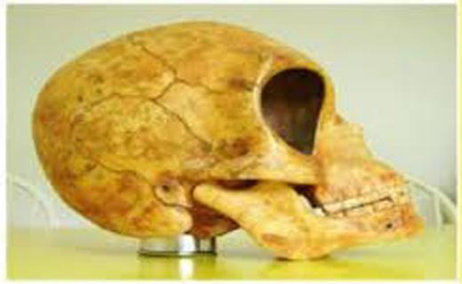 جراحی مغز در ۴۰۰۰ سال پیش+عکس