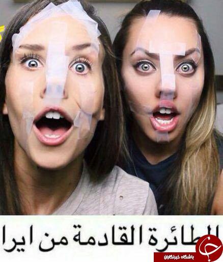 سوژه شدن جراحی بینی دختران ایرانی در فضای مجازی + عکس