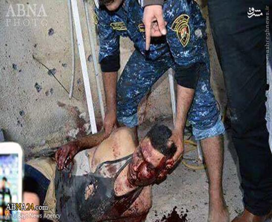 داعشی انتحاری | عکس جسد داعشی انتحاری در بغداد +18
