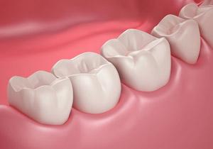 در کمتر از 3 دقیقه دندانهای خود را سفید کنید