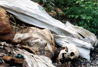 جسد انسان تجزیه بدن انسان پس از مرگ پزشکی قانونی