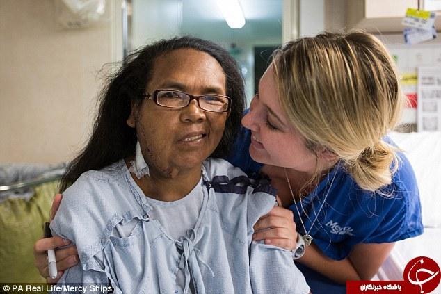 تومور 14 ساله به اندازه توپ بولینگ