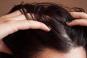 شامپو جدید | شامپو خانگی که سرتان را پر مو می کند+ طرز تهیه