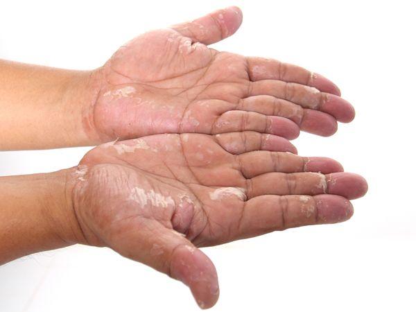 5 درمان خانگی فوق العاده برای اگزمای پوستی