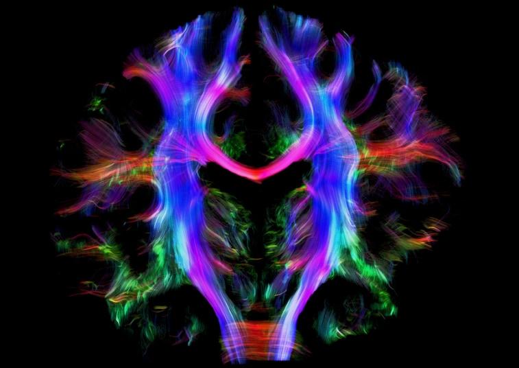 نقشه جالب سیم کشی ساختمان مغز انسان+ عکس
