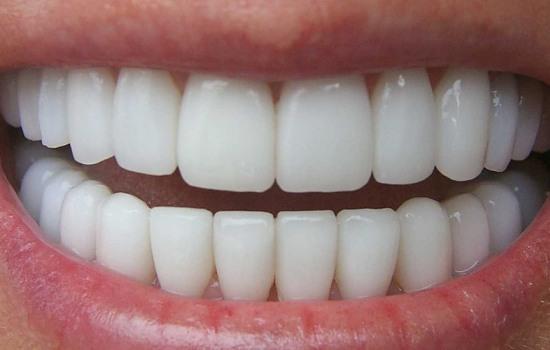 زيبايي دندان ها ، لبخند زيبا