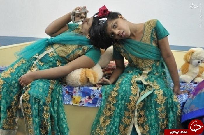 عکس/ خواهران بههم چسبیده هندی