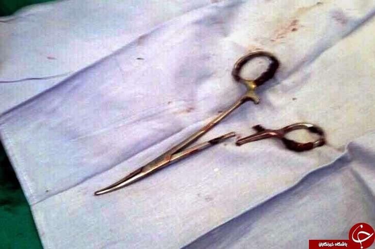 قیچی جراحی بعد از ۱۸ سال از شکم بیمار خارج شد+عکس