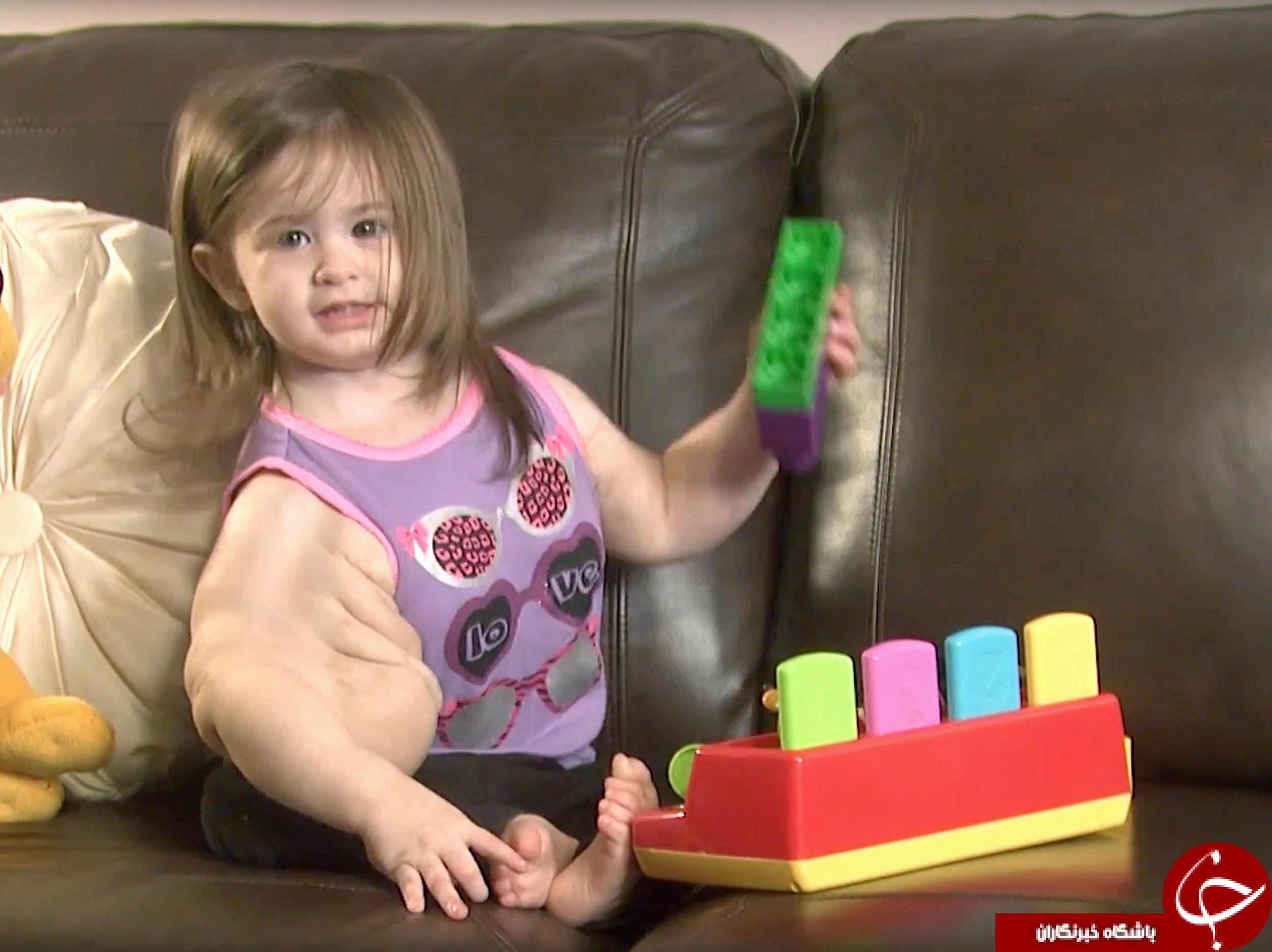 بیماری این دختر بچه را شبیه هالک کرد + تصاویر