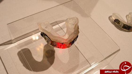 طراحی یک گارد دهانی برای تشخیص آسیبهای سر +تصاویر