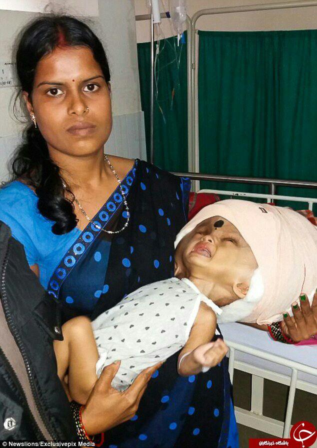جراحی نوزادی با بزرگترین سر دنیا+ تصاویر