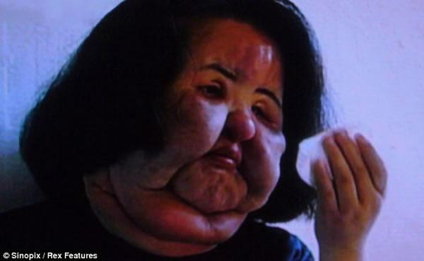 جراحی زیبایی به سبک روغن سرخ کردنی/ زنی که با دست خود صورتش را نابود کرد+تصاویر