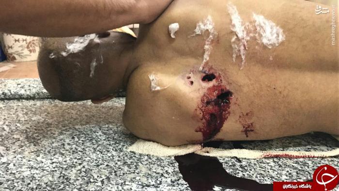 تصویری از پیکر شهید بحرینی در غسالخانه 18+