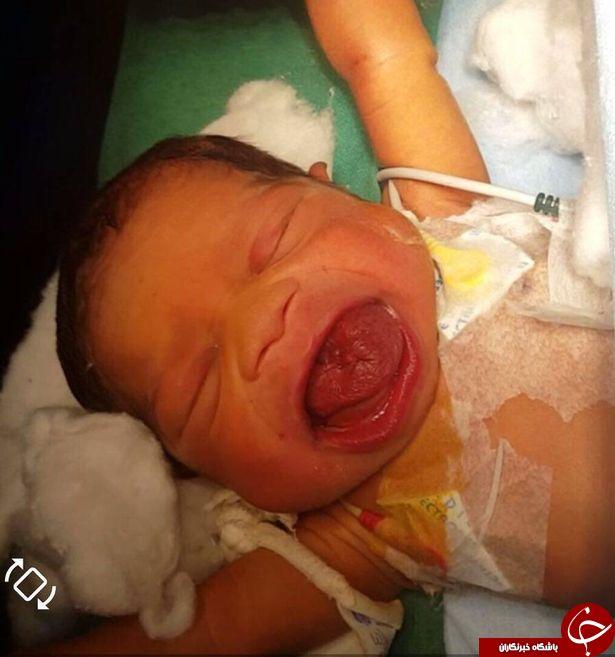تولد نوزادی با زبان بسیار بزرگ/ تصاویر