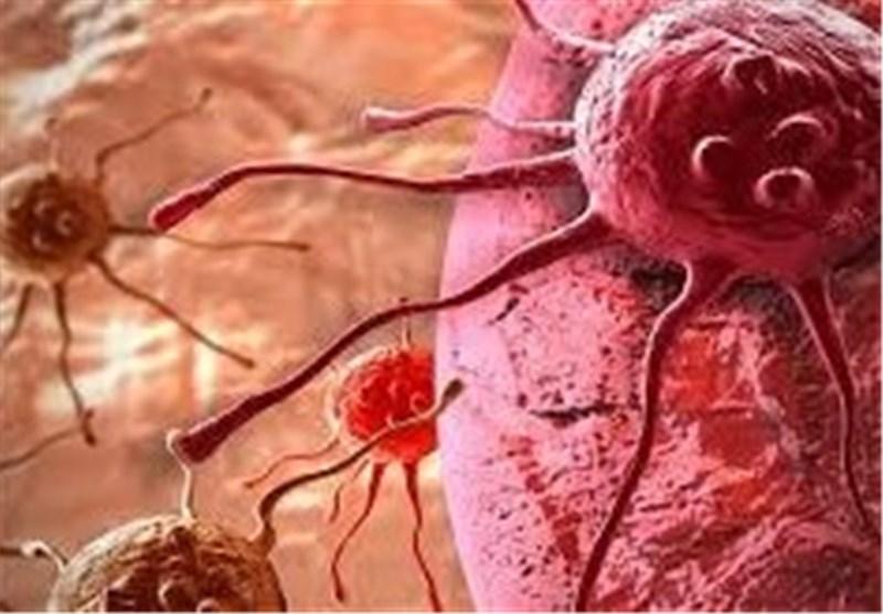 افزایش قابل توجه نرخ سرطان پانکراس تا سال 2020/مرگ و میر بالای سرطان پانکراس در کشور