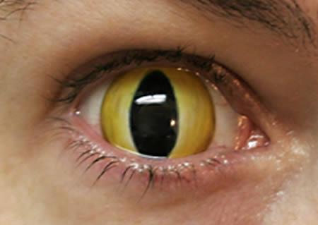 عجیب ترین لنزهای دنیا/ از لنز گورخری تا چشم اژدها