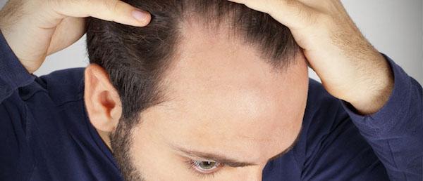 کلاه باعث کچلی در پسران می شود/ ریزش مو شدید به دلیل دماسبی کردن موها!