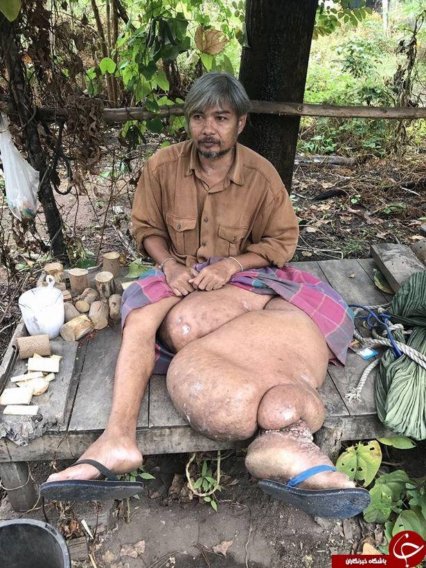 رشد عجیب پای یک مرد تایلندی وی را زمین گیر کرد+ تصاویر(20+)