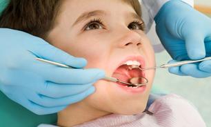 بلایی که پودرهای سفیدکننده بر دندان شما می آورد جبران نشدنی است