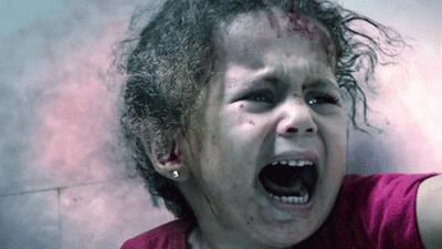 مرگ 63 هزار کودک یمنی به دلیل سوء تغذیه حاد؛ گواه جنایات آلسعود در یمن