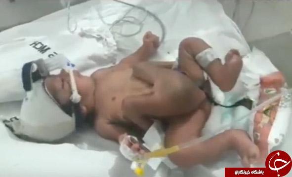 تولد نوزادی عجیب الخلقه در هندستان + تصاویر