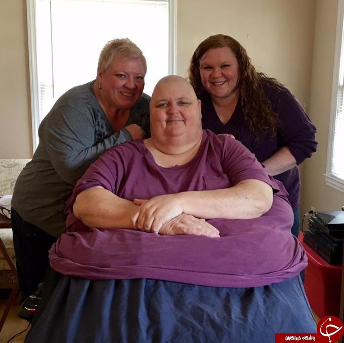خارج کردن تومور 58 کیلویی از شکم مرد آمریکایی+تصاویر