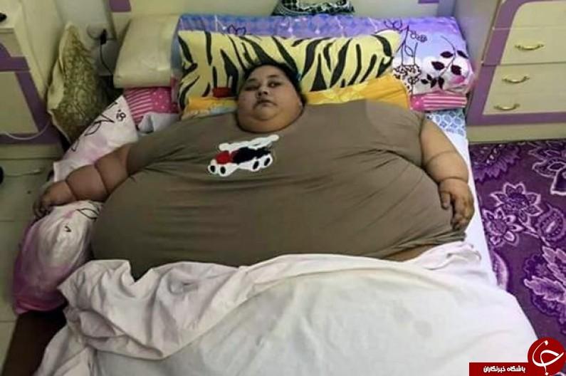 چاق ترین زن جهان در آستانه عمل جراحی+تصاویر