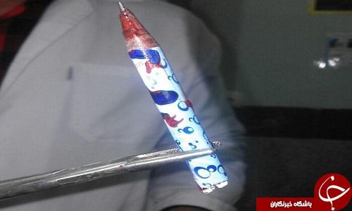 ماجرای عجیب فرو رفتن مداد در سر