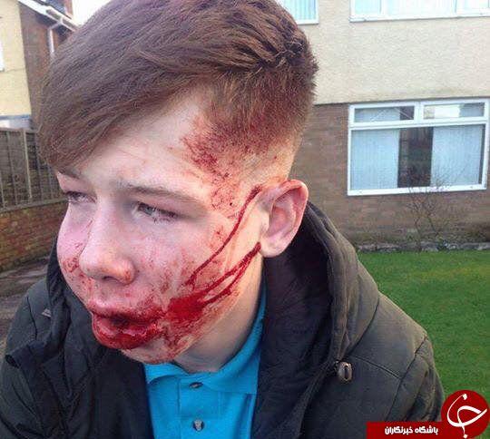 تصاویری هولناک از ضرب و شتم پسر نوجوان تا سر حد مرگ (+ ۱۸)