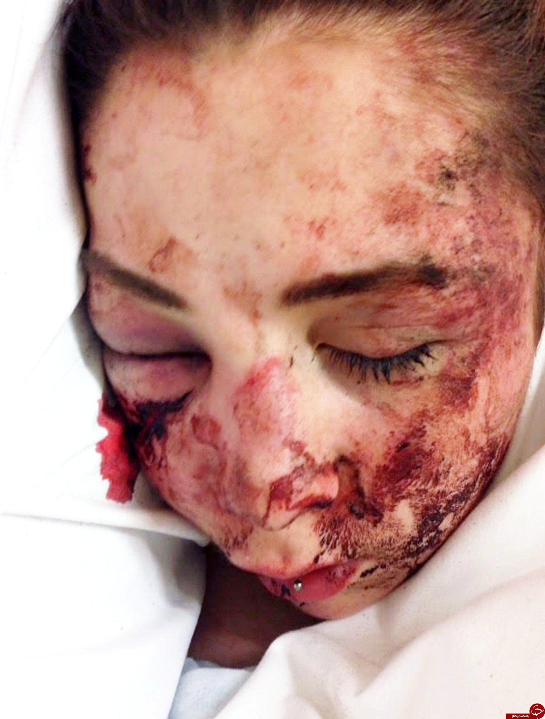 حمله ها و سرقتهای خیابانی باز هم قربانی گرفت +تصاویر(+18)