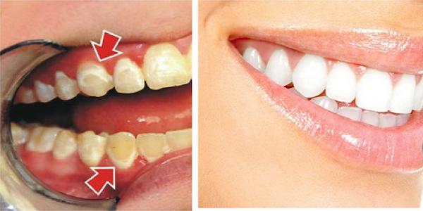 دندان های شما در عرض 5 دقیقه مانند مروارید می درخشد/ ترفندهایی که دندان هایتان رامثل مروارید سفید و درخشان می کند/ ترفندهای 5 دقیقه ای تا نوروز دندانهایتان را سفید و درخشان می کند/ ترفندهایی 5 دقیقه ای برای سفیدی و درخشندگی دندان ها تا نوروز/ ترفندهای جادویی برای سفیدی دندان ها تا نوروز/ سریعترین و ارزانترین راهکارها برای سفید دندان/ بدون نیاز به دندانپزشک تا نوروز دندان هایتان را سفید کنید