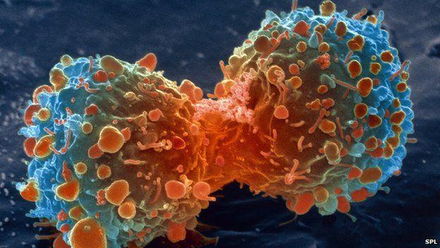 ترک عادت هايي که باعث سرطان مي شوند