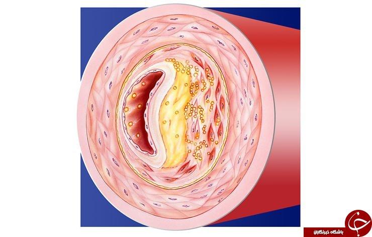 خطر سکته مغزی و گرفتگی رگ های قلبی را از روی چشمانتان تشخیص دهید