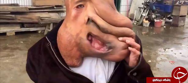 رشد تومور 15 کیلویی مرد چینی را به