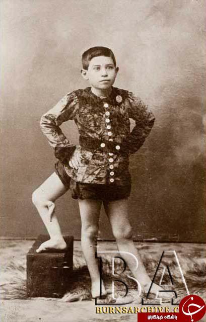 تصاویر عجیب دیده نشده از بازیگران سیرک در قرن 19