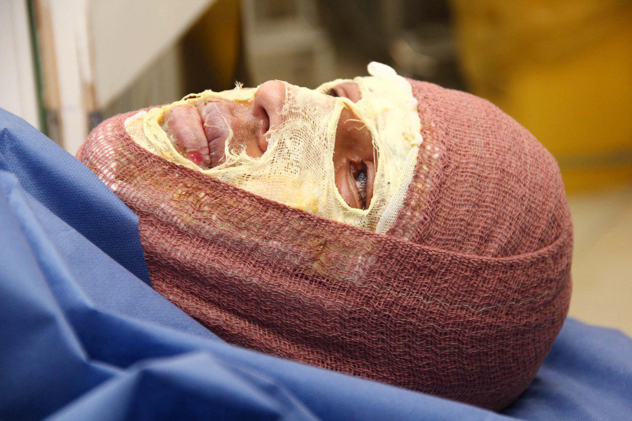 تصاویری وحشتناک با طعم درد و خون از چهارشنبه سوری سال ۹۴/ صورت هایی که با ترقه نابود شدند