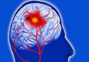 فاکتورهای هشداردهنده در بروز سکته مغزی