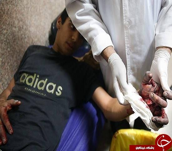 تصاویری وحشتناک از مصدومین چهارشنبه سوری سال های گذشته + (16+)