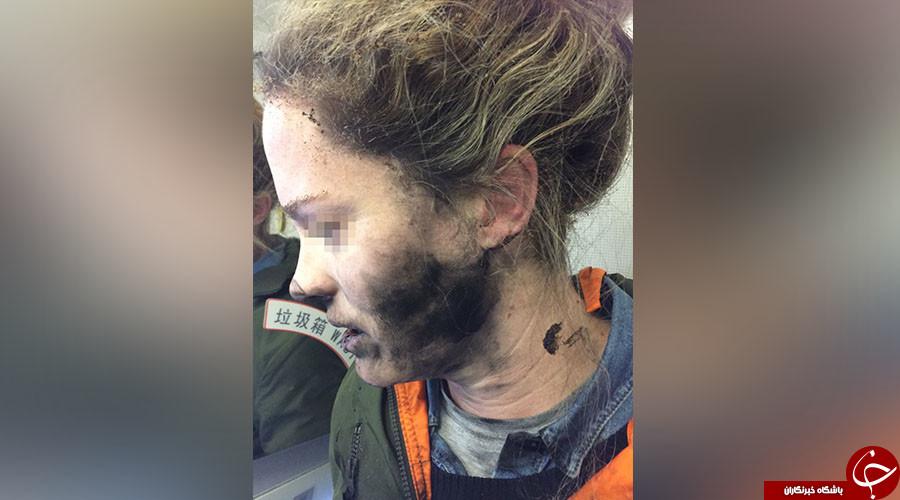 انفجار هدفون در هواپیما صورت دختر جوان را سوزاند+ تصاویر