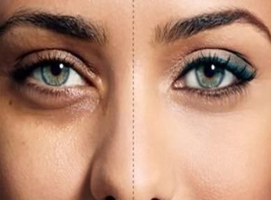 بهترین روش های درمانی برای رفع سیاهی دور چشم