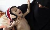 باشگاه خبرنگاران -گرسنگی در یمن بیداد می کند/ 17 میلیون یمنی توانایی تامین غذا ندارند
