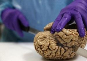 خواسته جالب دانشمندان؛ لطفا مغزتان را اهدا کنید!