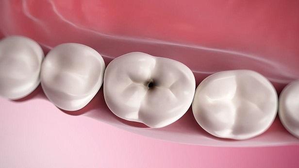 80 درصد فعالیت دانشکدههای دندانپزشکی برای درمان پوسیدگی دندانها ست