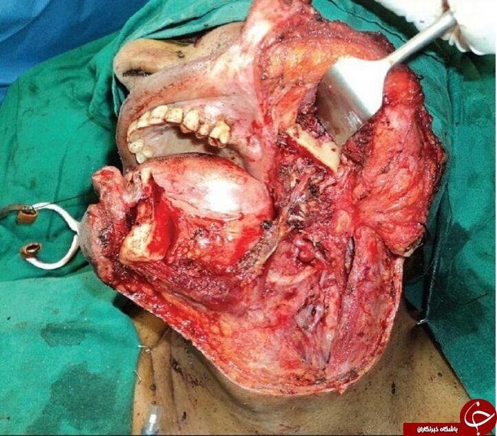 تومور وحشتناک در صورت مرد 64 ساله(+18)
